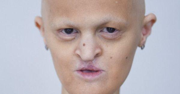 A modelo careca e sem dentes que venceu no mundo da moda ...