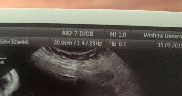 Vulto, fantasma? Mulher com gravidez complicada faz ultrassom e ...