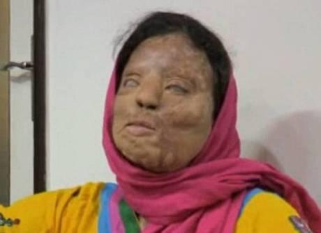 Vítima de ataque com ácido relembra incidente terrível
