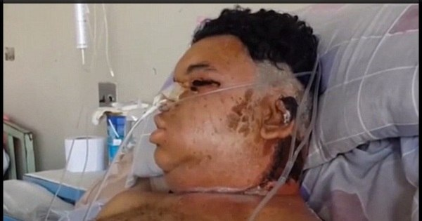 Luta pela vida: homem tem rosto, rins e fígado destruídos após ser ...