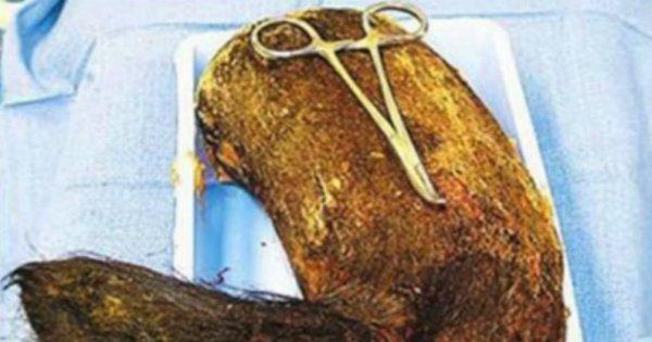 Imagens fortes: médicos retiram bola de pelo de 4kg do estômago ...
