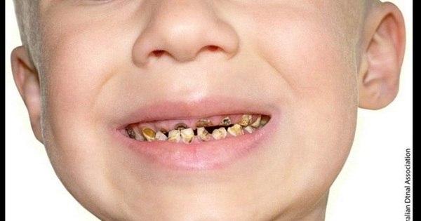 Imagens chocantes mostram como o açúcar pode destruir os dentes ...