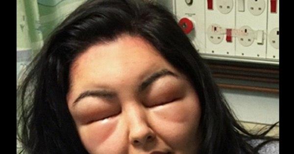 """Jovem fica cega e com rosto desfigurado após pintar o cabelo: """"Me ..."""