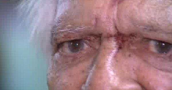 Idoso de 76 anos é espancado por assaltante em Ceilândia ...