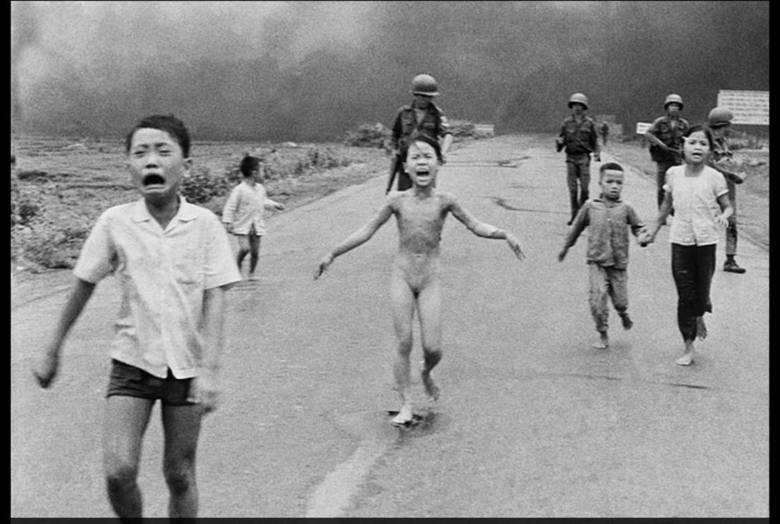 Nas imagens que fizeram Kim Phuc um símbolo da Guerra do Vietnã, suas queimaduras não são visíveis — nelas, é possível ver apenas sua agonia enquanto a menina corre em direção à câmera, os braços abertos, seu corpo nu depois que ela precisou rasgar as roupas que pegavam fogo. Mais de 40 anos depois, ela esconde as cicatrizes debaixo de blusas com mangas longas, mas as lágrimas que vez ou outra rolam por seu rosto desde aquele inesquecível 1972, estas, sim, são impossíveis de se disfarçar.  Junto com o fotógrafo Nick Ut — o homem que fez o sofrimento de Kim um símbolo da guerra — ela viajou para os Estados Unidos, onde teve, finalmente, uma chance de se curar completamente, algo que ela achava ser possível apenas depois da morte