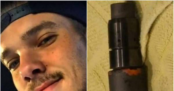 Rapaz de 21 anos fica em coma após cigarro eletrônico explodir na ...