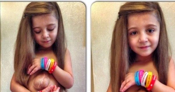 Garota de 6 anos surpreende médicos e vive com o coração fora da ...