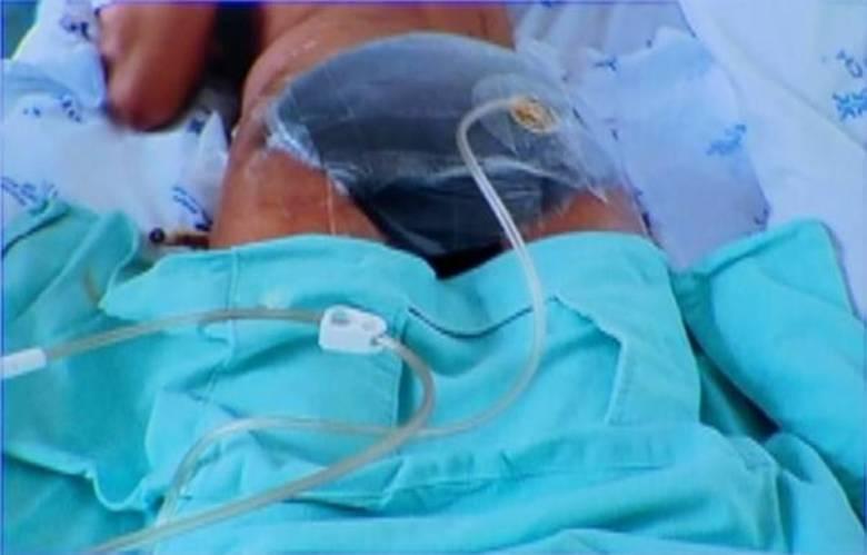 Uma jovem de 20 anos passou cinco meses internada e por diversas cirurgias após ter as nádegas dilaceradas em Anápolis (GO). Ela chegou a dizer aos médicos que foi atropelada, mas a família negou a versão e disse que a agressão foi cometida pelo namorado. O caso foi descoberto em março deste ano