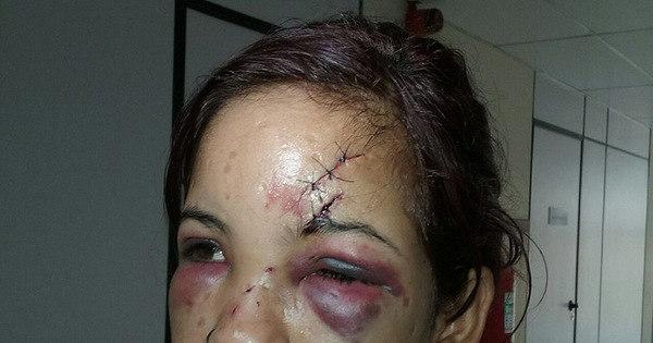 Após esbarrão, jovem tem rosto desfigurado em festa na Bahia ...