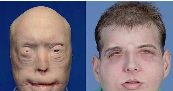 Bombeiro desfigurado por queimadura tem rosto reconstruído com ...