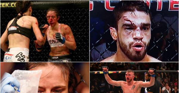 UFC deixou muitas caras estragadas no ano. Relembre - Fotos - R7 ...