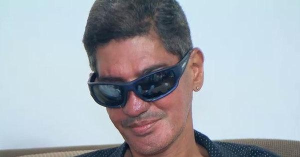 Após sofrer acidente e ter o rosto desfigurado, cantor vira alcoólatra ...
