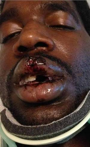 Fumante quase fica paralisado após cigarro eletrônico explodir em sua boca