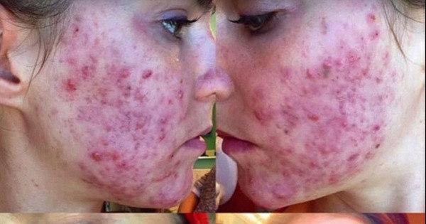 Gêmeas cantoras se livram da acne em três dias, mudando a ...