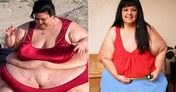 Mulher emagrece 107 kg após terminar com namorado que tinha ...
