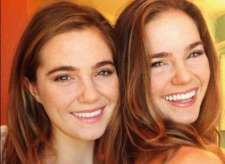 Gêmeas mudam a alimentação<br />e se livram da acne em três dias