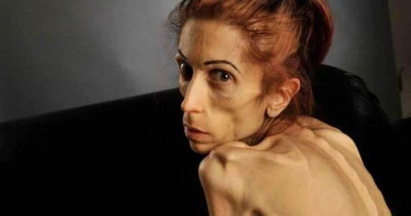 Americana que pesava 18 kg mostra recuperação pós- anorexia ...