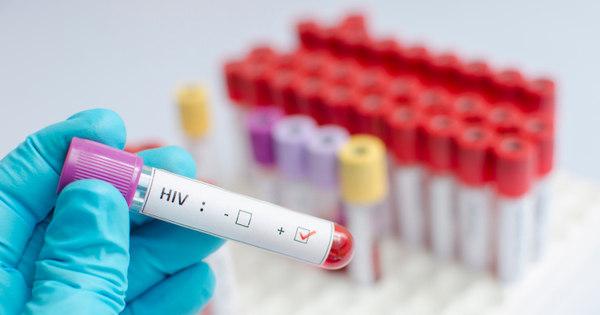 Ser portador de HIV não significa ter Aids. Entenda - Notícias - R7 ...