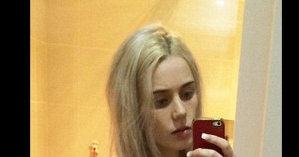 Jovem anoréxica quase morre após ficar 1 semana sem comer ...