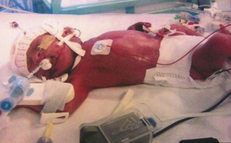 Leanne Sawyer, mãe de Chloe, que nasceu prematura, teve de dar adeus à filha por 11 vezes, depois de os médicos dizerem em diversos momentos que a menina não sobreviveria. De acordo com informações do site Mirror, a pequena nasceu com 25 semanas e cerca de 0,5kg