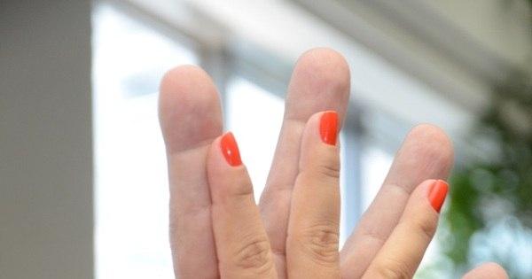 Acromegalia: doença rara que provoca crescimento deforma mãos ...