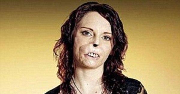 Mulher com rosto desfigurado por meningite comove público em ...
