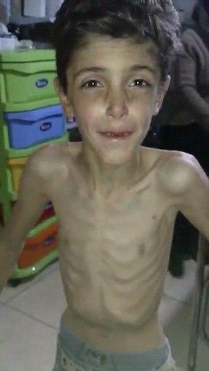 A cidade em que crianças estão morrendo de fome no oeste da Síria vai finalmente receber ajuda humanitária, após as imagens da população esquelética rodarem o mundo