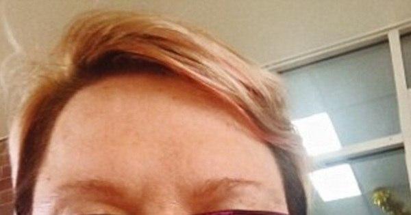 Mulher perde queixo e lábio por câncer raro e sofre com rosto ...