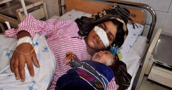 Violência doméstica: mulher tem nariz arrancado pelo marido no ...