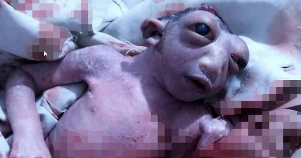 Bebê nasce sem metade da cabeça e surpreende os médicos ao ...