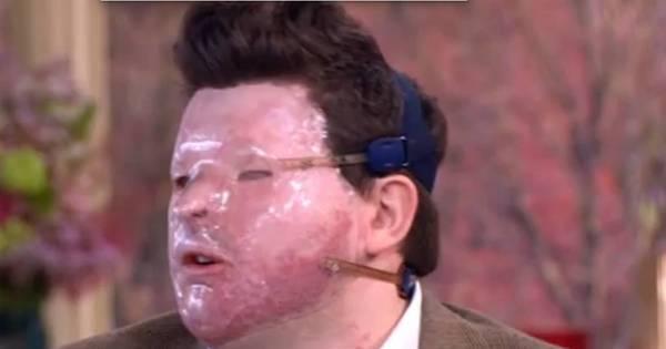 Homem é confundido com criminoso, sofre ataque de ácido e fica ...