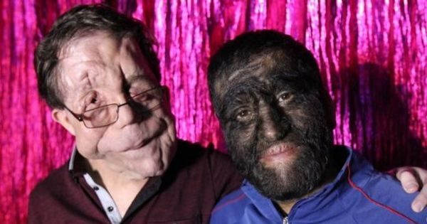 'Homem elefante': Como me convenci a virar estrela de ' freak show ...