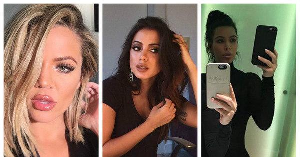 Seguidores acusam Anitta de colocar botox no lábio! Veja as ...