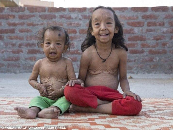 Uma doença rara deixou o menino Keshav Kumar, de 18 meses, e sua irmã, Anjali Kumari, de sete anos, com aparência de idosos
