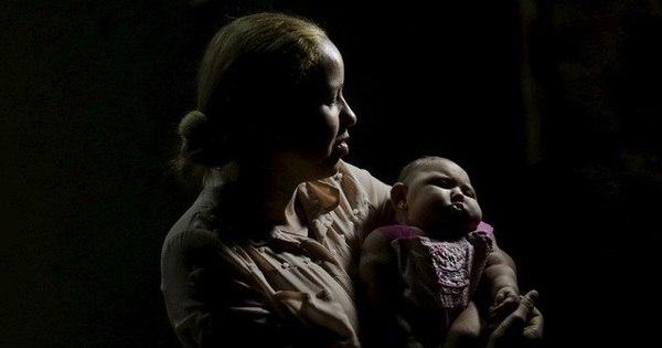 Ministério da Saúde confirma 404 casos de microcefalia; 17 ...
