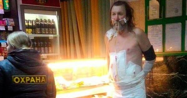 Paciente foge de hospital vestindo lençol e curativos para tomar ...