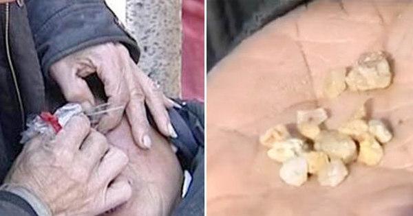 Chinesa chora lágrimas de pedra e deixa médicos com a pulga ...