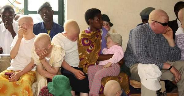 """"""" Povo fantasma"""": menina albina de apenas 5 anos é desmembrada ..."""