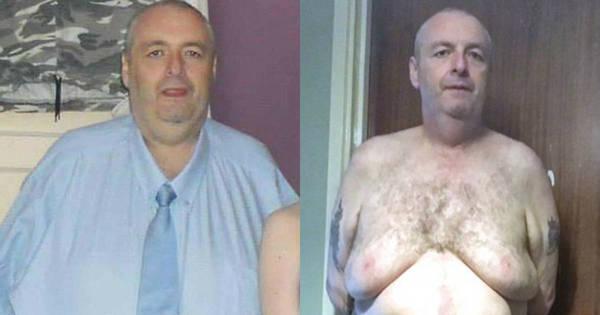 Homem de 190 kg perde 60 kg, mas sofre com 12 kg de pele - Fotos ...