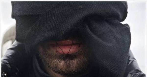 Homens costuram os lábios em protesto contra demolição de parte ...