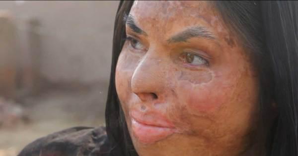 Trabalho escravo e mulheres atacadas com ácido: vida no ...
