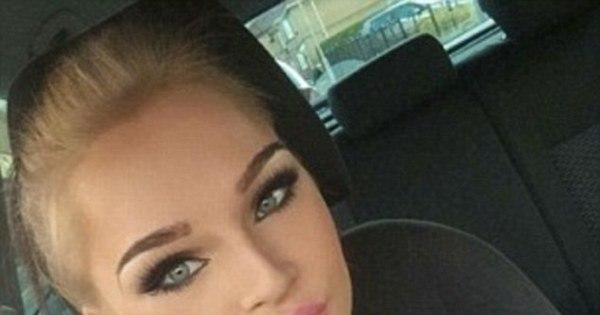 Garota que ficou desfigurada em acidente tem rosto reconstruído e ...