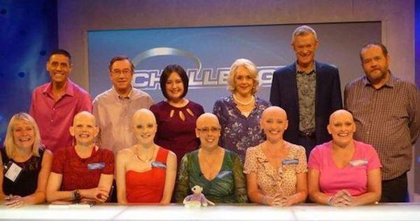 Mulher com alopecia assume careca após 17 anos usando peruca ...