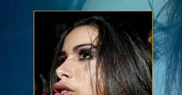 Anitta vai conseguir reverter volume exagerado na boca? Médico ...