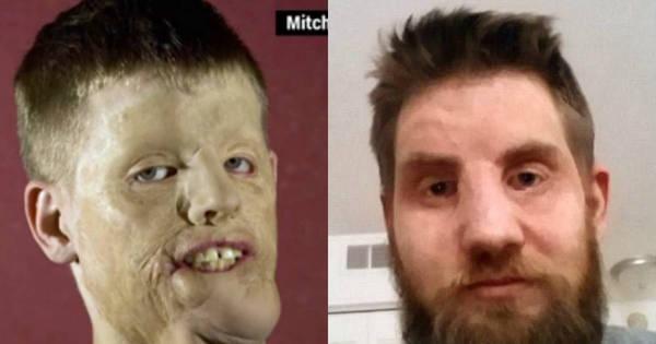 Homem desfigurado por choque elétrico recebe transplante de rosto ...