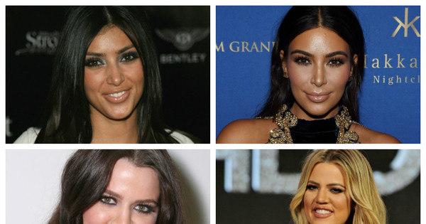 Veja como eram as Kardashian antes e depois das cirurgias plásticas