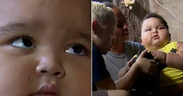 Bebê de apenas um ano pesa 31 kg, o equivalente a uma criança ...