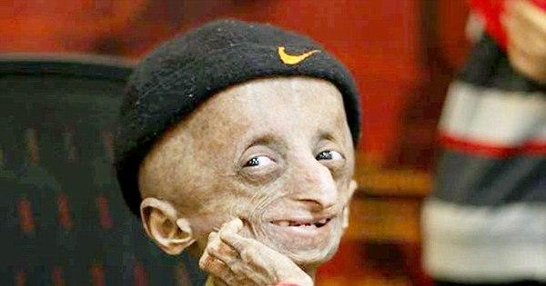 Morre na Índia adolescente com doença rara que faz envelhecer 8X ...