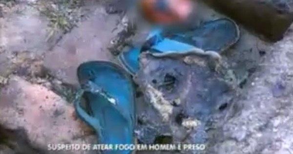 Vítima queimada viva entrega assassino antes de morrer - Notícias ...