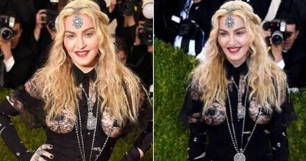 """Ronaldo Ésper alfineta visual de Madonna: """"Ela não pode mais ..."""